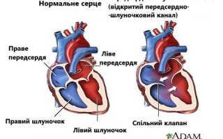 8 признаков, что у вас могут быть шумы в сердце