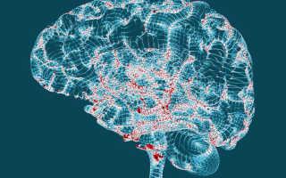 10 ранних признаков болезни Альцгеймера