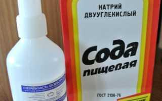 Как отбелить белье в домашних условиях с помощью соды, перекиси водорода, аспирина и других средств