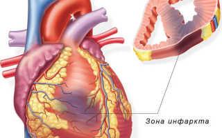 7 скрытых признаков инфаркта, которые нельзя игнорировать