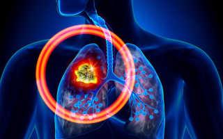 7 симптомов рака лёгких, которые нельзя пропустить