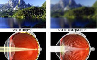 7 скрытых признаков, что у вас катаракта